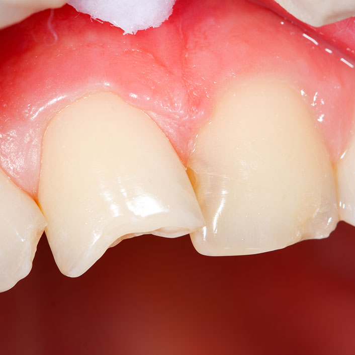 Composite Bonding - Dental Services